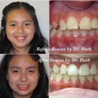 Braces by Dr Ruth